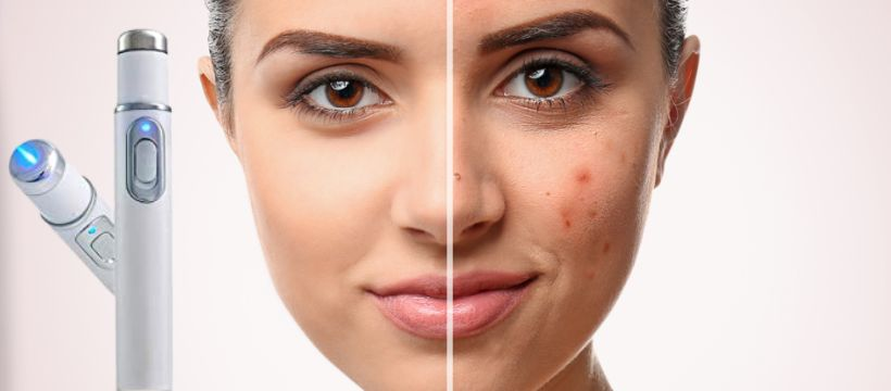 Best Blue Light Therapy for Acne