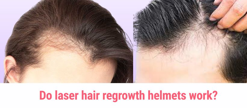 Do laser hair regrowth helmets work?